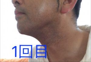 男性おヒゲ脱毛モニターU様、5回目☆